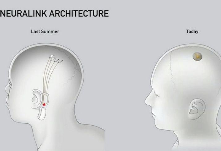 Perigos e possíveis efeitos adversos do Neuralink